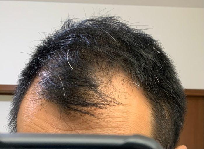 39歳M字ハゲになってきた男性の前頭部の画像