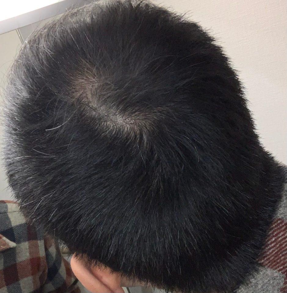 39歳男性のつむじの毛の量が薄くなってきた状態の画像